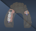 Implantes-DentalCad-r