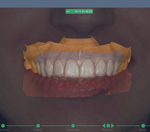 SmileDesignSoftware-r